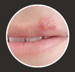 COMMON COLD SORE SYMPTOMS - Virasolve